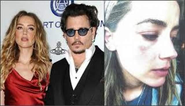 Каково же было удивление всего мира, когда в 2016 году Эмбер подала на развод, приложив к делу фотографии своих побоев, нанесенных якобы милашкой Джонни.