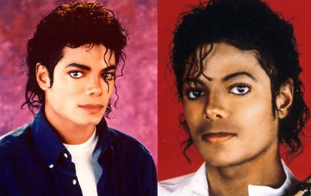 """К 1984 году Джексон уже отказался от пышной прически, а его нос заметно укоротился. Но на съемках ролика """"Пепси"""" произошло ЧП: фейерверком музыканту обожгло лицо и голову. После этого он сделал свою третью ринопластику, а также несколько пластических операций, чтобы скрыть шрамы от ожогов."""