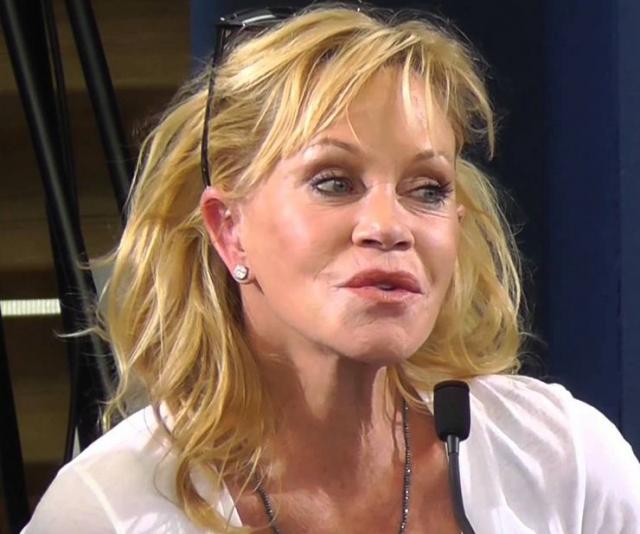 Еще в 2011 году звезда призналась, что в 2010-м сделала круговую подтяжку лица и уколы коллагена, чтобы сделать свою кожу более гладкой и молодой.