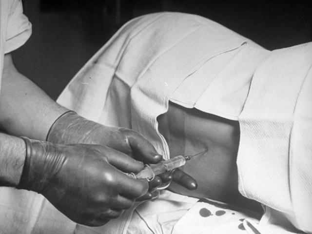 В своих экспериментах Бир и его ассистент вводили кокаин в спинной мозг пациента, чтобы тот не чувствовал боли, но был в сознании. Перед тем, как на себе испытать, что это такое, врач провел шесть подобных операций.