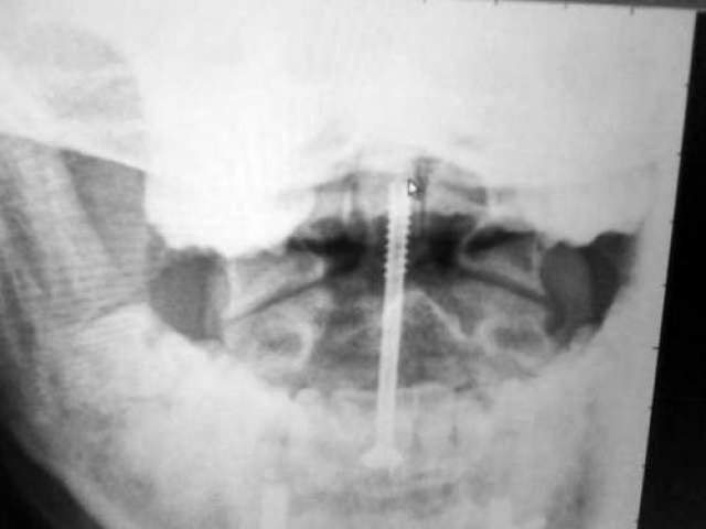 Девушка выжила. После сложнейших операций ее тело хирурги собрали с помощью 11 титановых шпилек, которые прикрепили к шее, позвоночнику, ноге, а также винта для поддержания шеи.