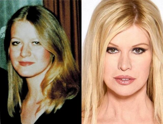 Все началось еще в 1970-х, когда она решила прибегнуть к помощи хирургов. По одной версии, Джексон застукала своего парня, занимающегося мастурбацией с куклой Барби, а по другой – Синди пребывала в депрессии после того, как ее бросил жених.