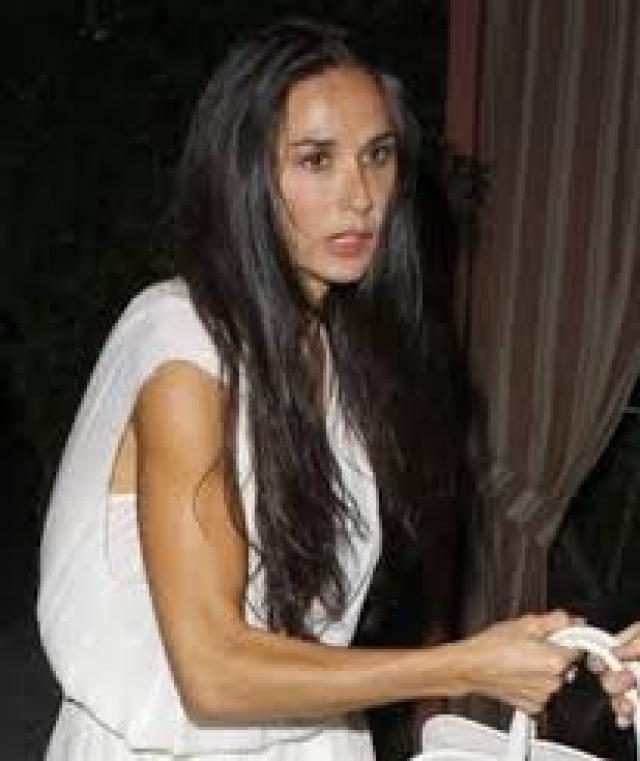 Деми Мур. Актрису в состояние нервного срыва и истощения загнал развод, последовавший за громкой изменой Эштона Кутчера.