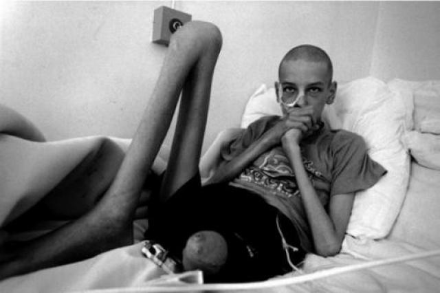 Как выяснили ученые,за 25 лет после Чернобыльской катастрофы генетические мутации вдвое увеличили число врожденных аномалий у потомков людей, живущих на территориях, пострадавших от радиации.