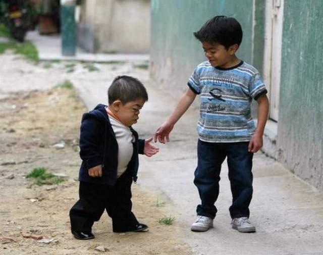Эдвард ниньо Эрнандес, 32 года, Колумбия. Рост 70 см. Мужчина перестал расти в возрасте двух лет. В сентябре 2010 года его официально признали самым маленьким человеком на планете.