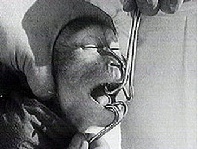 В 1926 году Илья Иванович со своим сыном и сотрудниками отправился в Гвинею, где руководство Пастеровского института позволило ему работать в своей научно-исследовательской лаборатории. Там он долго не мог достать нужных для опытов обезьян.