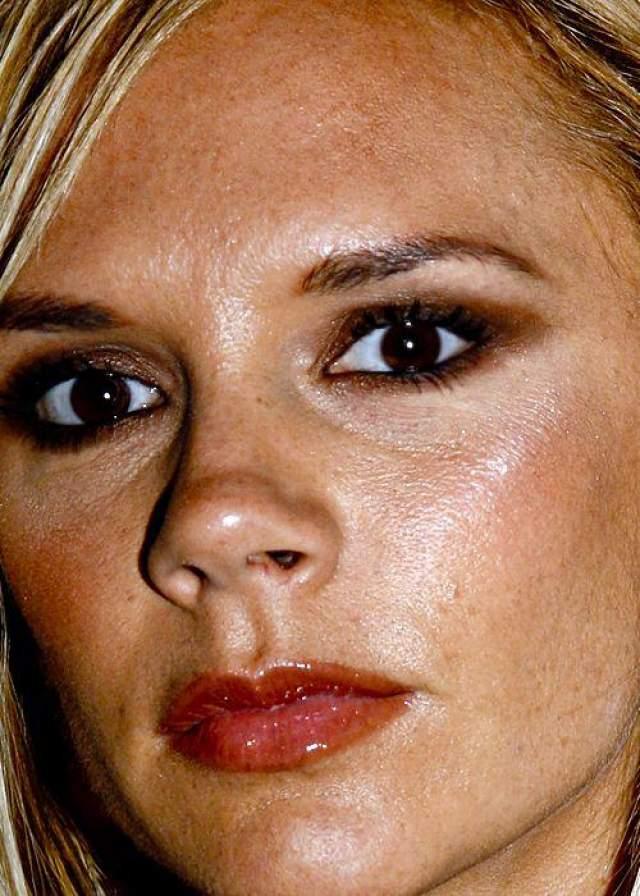 Виктория Бекхэм довольно долго страдала комплексами по поводу своей внешности, в частности, из-за неидеальной кожи.