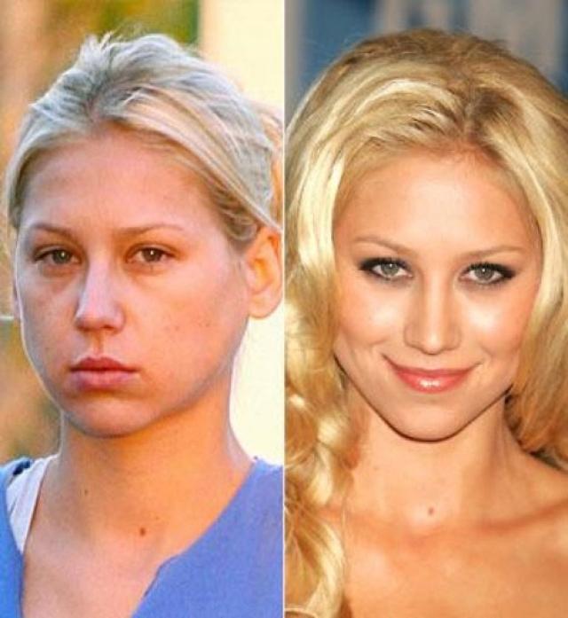 Анна Курникова. В российской теннисистке без макияжа сложно узнать роковую блондинку, в образе которой она предстает в большинстве фотосессий.