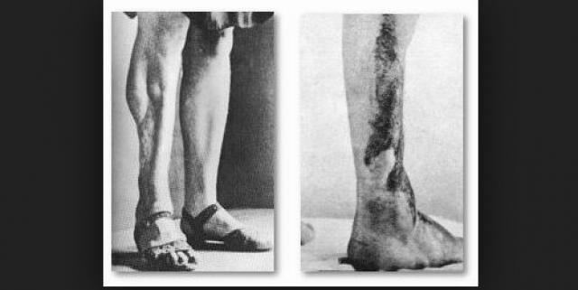 В Заксенхаузене и других лагерях проводились эксперименты по обнаружению наиболее эффективного способа лечения ранений, полученных воздействием горчичного газа.