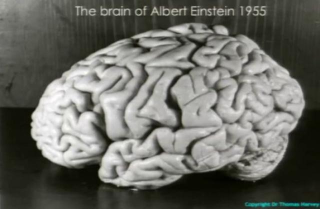 Через семь часов после смерти эксперт по вскрытию Томас Харвер удалил без согласия родных и близких мозг ученого для изучения. Переезжая по работе из одного штата в другой, Харви везде таскал с собой заспиртованный мозг гения.