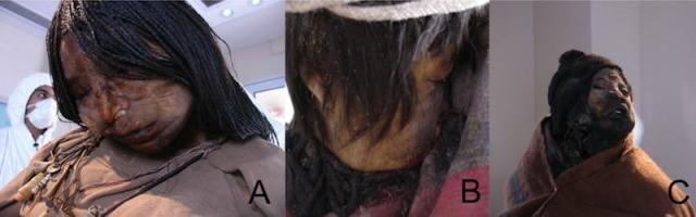 Известно, что незадолго до смерти девушка страдала от хронической инфекции легких, похожей на туберкулез, что в то время было смертным приговором.