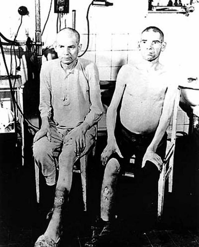 Кроме того, нацистское правительство стерилизовало около 400 тысяч человек в ходе программы по обязательной стерилизации.