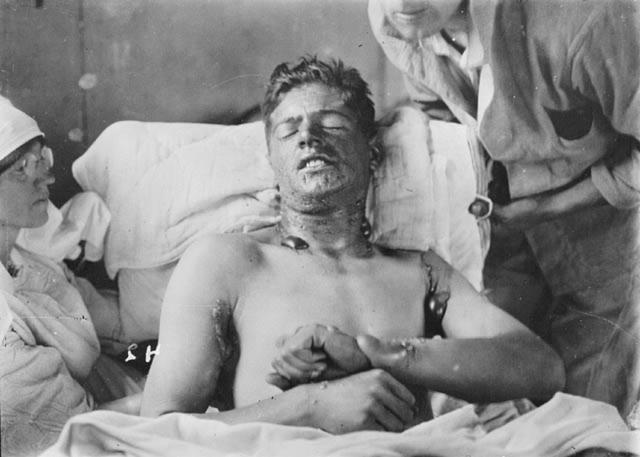 В рану также помещали древесную стружку или стекло. Инфекцию лечили сульфаниламидом и другими лекарствами, чтобы определить их эффективность.