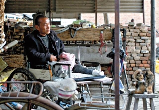 """""""Я не хотел огорчать свою жену, но мне пришлось будить ее, когда ножовочное полотно лопнуло"""", - рассказал китаец. Многие поставили под сомнение рассказ Чжэна, но когда Яньлян нуждался в другой ампутации, один великодушный врач из Шанхая вызвался бесплатно провести операцию."""