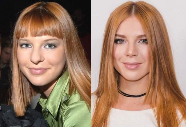 Наталья Подольская, 36 лет. Певица сделала две ринопластики, причем подряд.