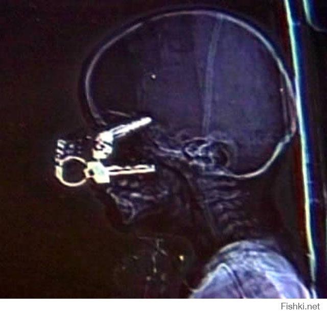 При падении полуторагодовалому мальчику в голову воткнулись ключи от машины. Мальчик остался жив, без серьезных повреждений.