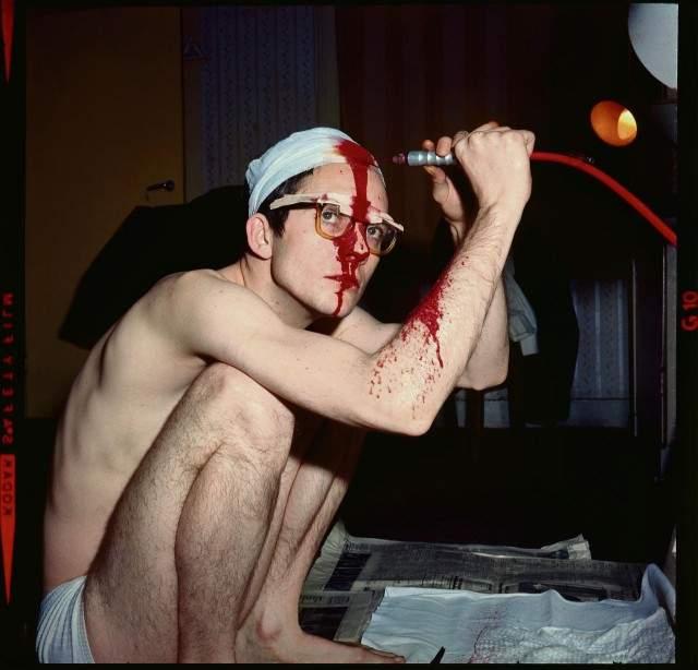 Операция длилась 45 минут.Вскоре после операции Хьюз пришел в местную больницу для получения рентгеновского снимка в качестве доказательства проведенной трепанации. Однако там он попал в руки психиатров, которые предположили, что парень шизофреник.