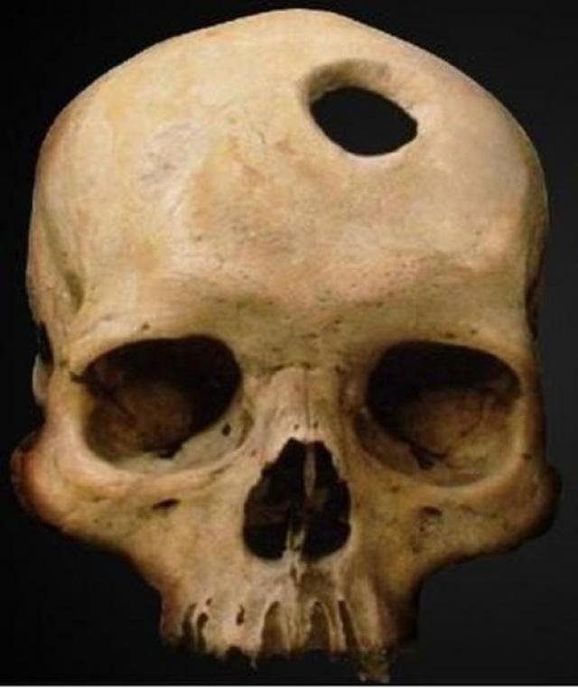 Аманда Филдинг. Богемная художница считала, что достичь духовного просветления она может лишь с помощью трепанации черепа.