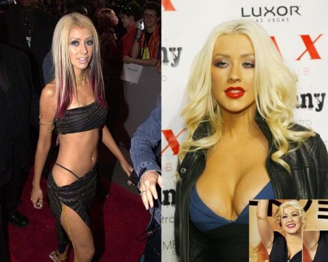 Кристина Агилера. Журналисты считают, что певица увеличила грудь, когда их конкуренция с Бритни Спирс достигла апогея.