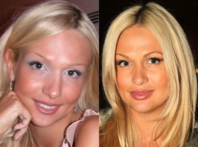 Виктория Лопырева, 35 лет. Телеведущая пользовалась услугами пластических хирургов не единожды, но самая первая операция была именно по исправлению формы носа.