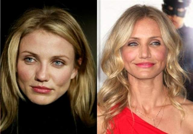 Камерон Диаз, 46 лет. Актриса ломала нос четыре раза во время катаний на серфинге. Последний раз, подтолкнувший ее в руки хирургов, случился в 2003 году.
