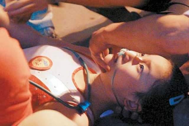 Китаянка получила переломы второго и третьего шейных позвонков, что чаще всего приводит к смерти. После нескольких операций гимнастка лишь могла немного шевелить правой ногой.