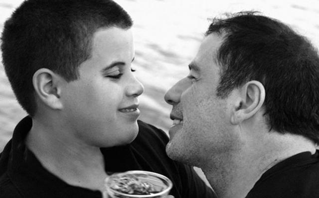 К несчастью, Джетт ушел из жизни в 2009 году в возрасте 16 лет от припадка, вызванного синдромом Кавасаки - болезнью, характеризующейся поражением сосудов.