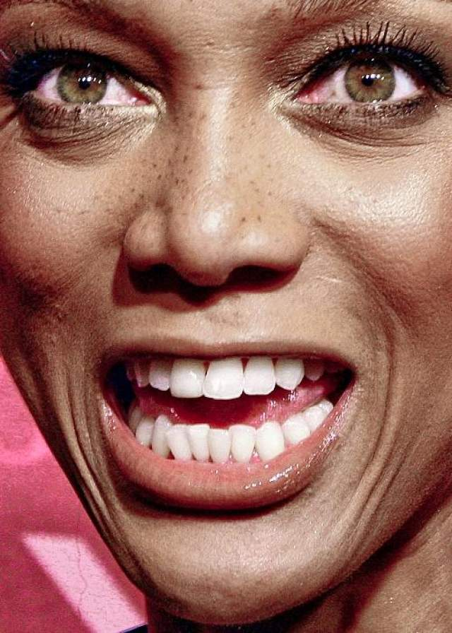 У Тайры Бэнкс очевидно неидеальные зубы и, что неожиданно для темнокожей модели, веснушки.