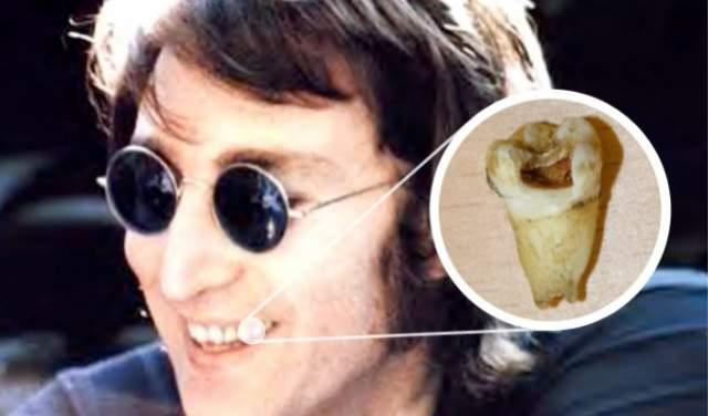 Лот на аукцион предоставил коллекционер Алан Макги, который получил его от родственников домработницы Леннона. Певец подарил женщине зуб, чтобы та передала его своей дочери, фанатевшей от группы The Beatles.