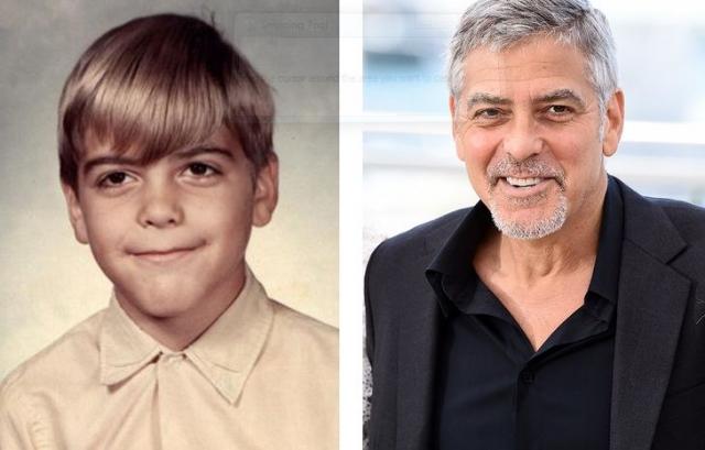 """Джордж Клуни. В школе актера неожиданно поразил паралич, из-за которого у него не открывался левый глаз, из-за чего его дразнили Франкенштейном. Болезнь отступила через год, а воспоминания остались: """"Это было худшее время в моей жизни. Меня высмеивали и дразнили, но это испытание сделало меня сильнее,"""" - вспоминал Клуни."""