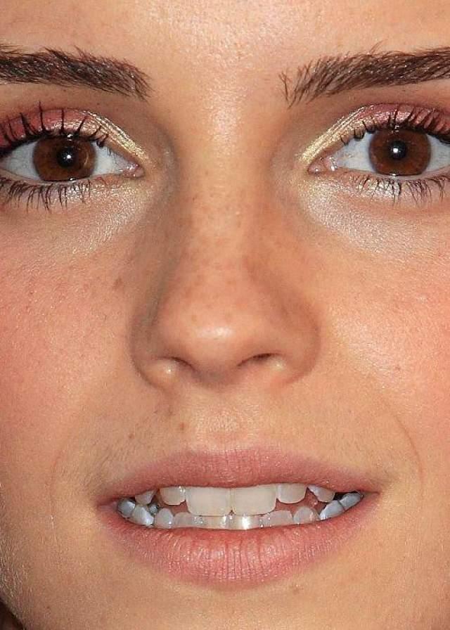 А вот у актрисы Эммы Уотсон интернет-пользователи обнаружили веснушки и маленькие усики.