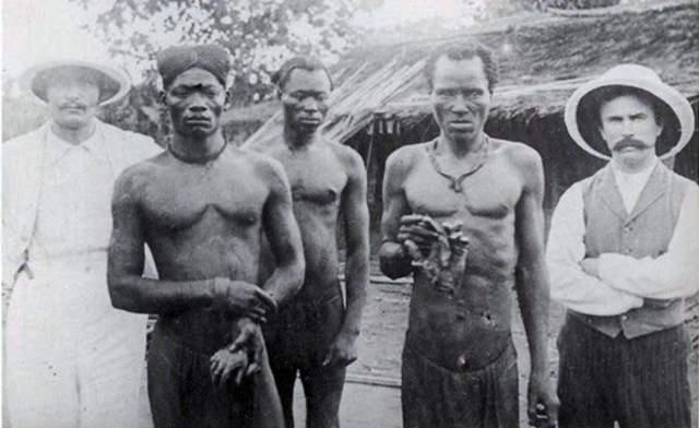 На фото - конголезский работник каучуковой плантации, который не смог выработать норму. В качестве наказания надсмотрщики съели его пятилетнюю дочь, отдав останки в назидание… Подобное практиковалось довольно часто, что можно заметить по другим снимкам.
