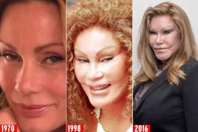 Джоселин Уалденстейн. Женщина вложила в собственную внешность более четырех миллионов долларов..