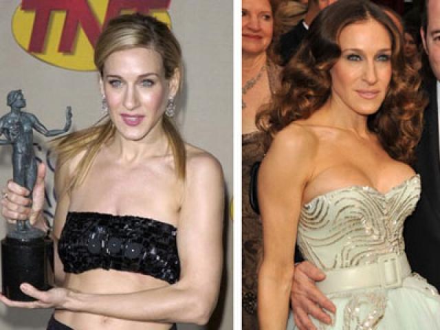 Сара Джессика Паркер. Сравнивая нынешние фото звезды с ее снимками в молодости, вмешательство хирургов легко заметить.
