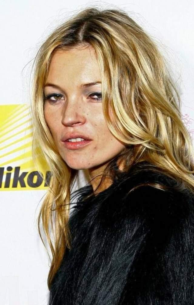 В 2005 году супемодель Кейт Мосс обратилась в клинику после обвинений в употреблении кокаина.