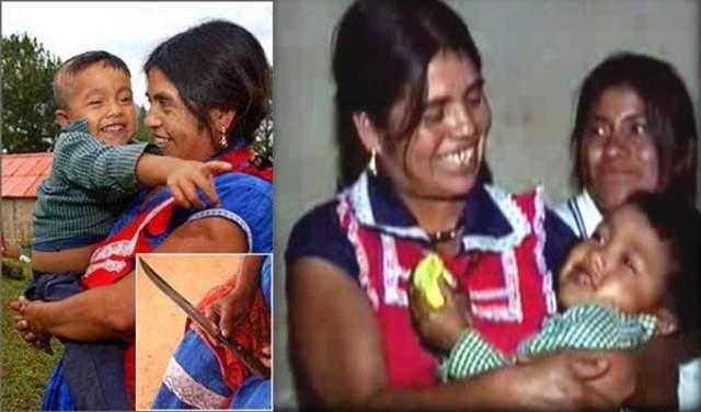 Вместо анестезии мексиканка выпила крепкого алкоголя и сделала 17-сантиметровый разрез кухонным ножом. После этого она достала ребенка, перерезала пуповину и потеряла сознание. Спустя 16 часов она оказалась в больнице, где ей оказали медицинскую помощь. Ребенок оказался совершенно здоров.