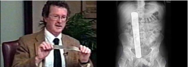 Дональд Черч сумел заработать на ошибке врачей 97 тысяч долларов. Когда его оперировали в 2000 году в Вашингтонском медицинском центре, в животе оставили хирургический инструмент 31 сантиметра в длину.