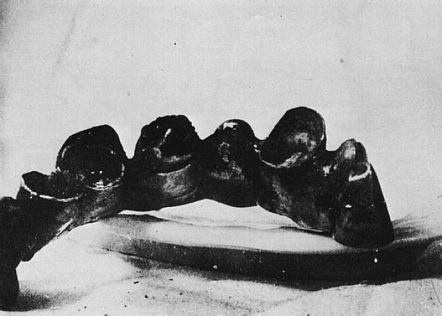 11 мая 1945 г. стоматолог Гайзерман подробно описала анатомические данные ротовой полости Гитлера, которые совпали с результатами исследования, проведенного 8 мая.