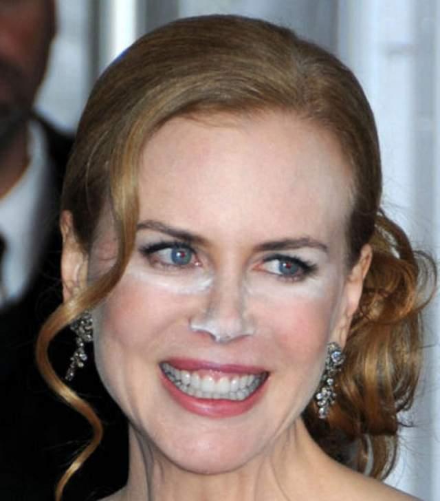 """Николь Кидман в Каннах на презентации фильма """"Принцесса Монако"""" также переборщила с чудодейственным средством."""