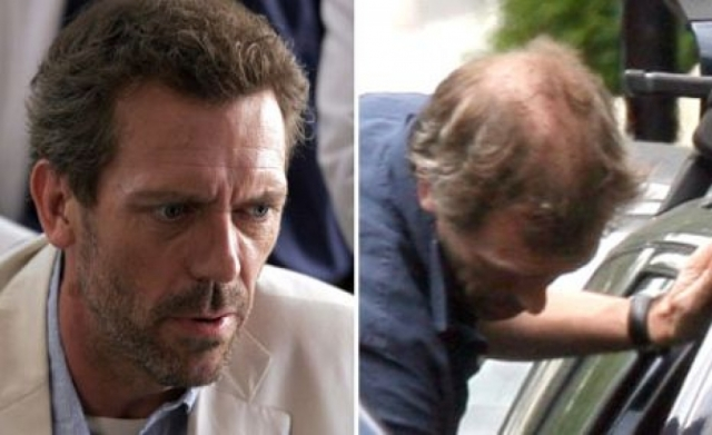 """Хью Лори. Даже многие поклонники считают, что звезда сериала """"Доктор Хаус"""" обладает густой шевелюрой, поскольку парик, который подобрали для него стилисты выглядит весьма естественно."""