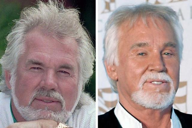 Узнать его можно лишь по фирменной белой бороде, которая осталась на месте, черты лица Роджерса полностью изменили подтяжки и ботокс.