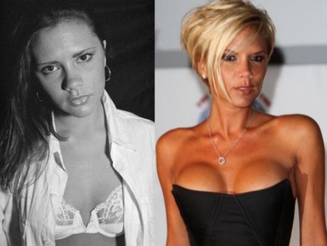 """Виктория Бекхэм. Певица, будучи участницей группы """"Spice Girls"""", постоянно подвергалась нападкам критиков по поводу своей внешности. Возможно именно из-за этого она решилась на увеличение груди."""