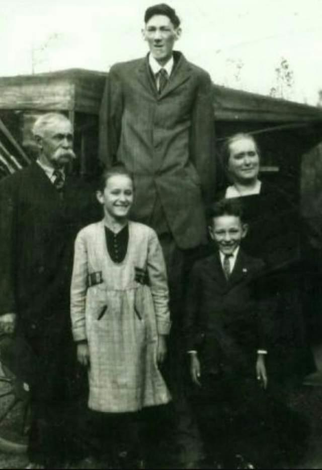 Более того, Бернард рос до своей кончины: по некоторым данным, ближе к смерти он дотягивал до 2,53 метра, носил обувь 25 американского размера. Правда, недолго бедняге пришлось мучиться - в 1921 году в возрасте 23 лет он умер.