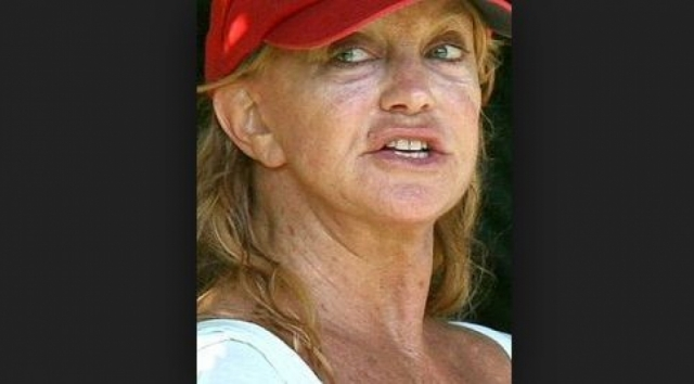 Время брало свое и актриса в дополнение к естественному старению прибегла к косметическим операциям ,которые не лучшим образом отразились на ее лице.