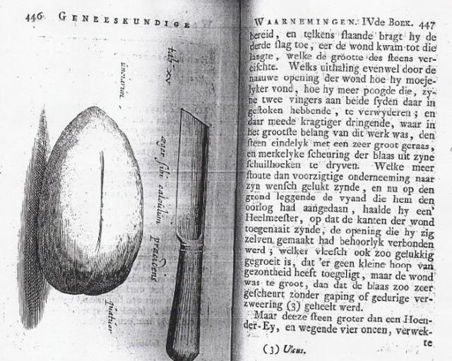 Кузнец Иоанн Летейский самостоятельно удалил себе камень из мочевого пузыря. Без врачебной помощи, правда, не обошлось: для того чтобы зашить разрез кузнецу пришлось приглашать медиков.