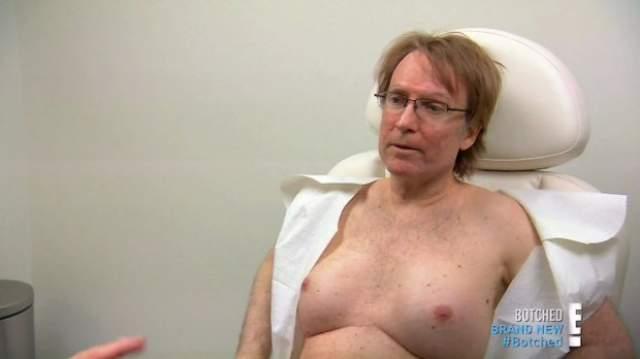 """""""Когда я показал свою грудь другу, то он смеялся в течение 10 минут"""", - сказал Брайан. Никто не ожидал, что мужчина проходит с ними целых 20 лет."""