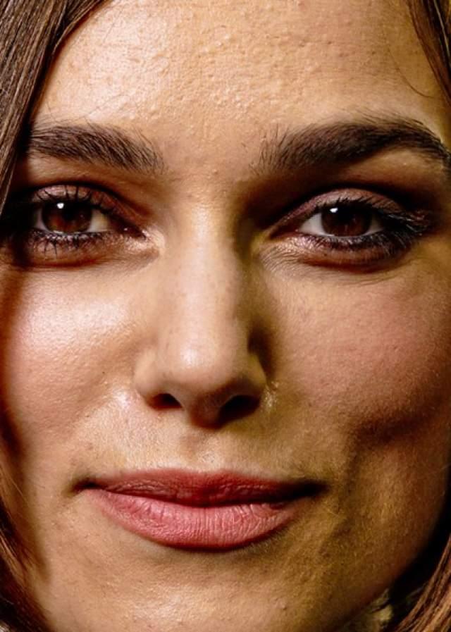 Кира Найтли - еще одна обладательница не идеальной кожи.
