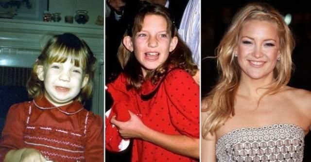 """Кейт Хадсон, 39 лет. Удивительно, но лопоухой Хадсон никто не называл, а лишь косвенно намекали на это прозвищем """"голова-молоток""""."""