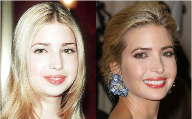 Очевидно, что сделанные изменения пошли на пользу: теперь Иванка - настоящая красавица. А ведь она всего лишь немного исправила кончик носа, укоротив его.