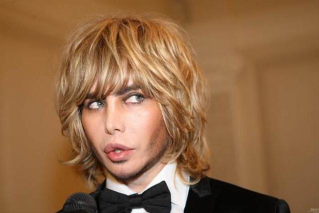 Сергей изменил нос, губы, скулы, подбородок. В результате лицо стало совершенно неузнаваемым.
